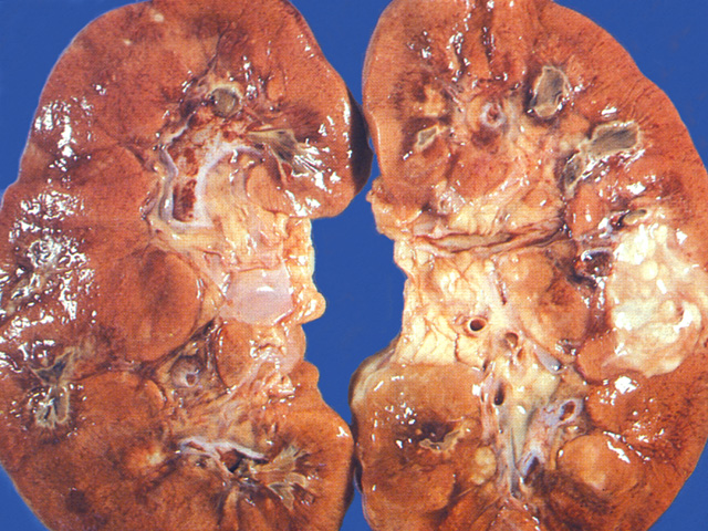 chronic pyelonephritis - photo #16